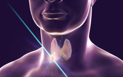 Nodulo tiroideo: quando bisogna asportarlo