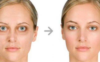 Morbo di Basedow: quando la malattia della tiroide colpisce gli occhi
